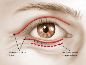 Blepharoplasties intervention